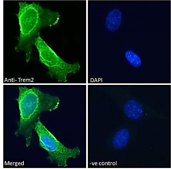 Immunocytochemistry - Anti-TREM2 antibody (ab95470)