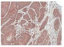 Immunohistochemistry (Formalin/PFA-fixed paraffin-embedded sections) - Anti-FGFRL1 antibody (ab95940)
