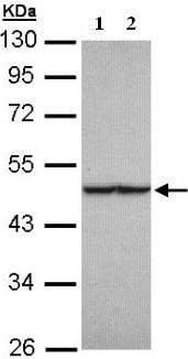 Western blot - Anti-FH/Fumarase antibody (ab95947)