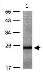 Western blot - Anti-RAB2B antibody (ab95952)
