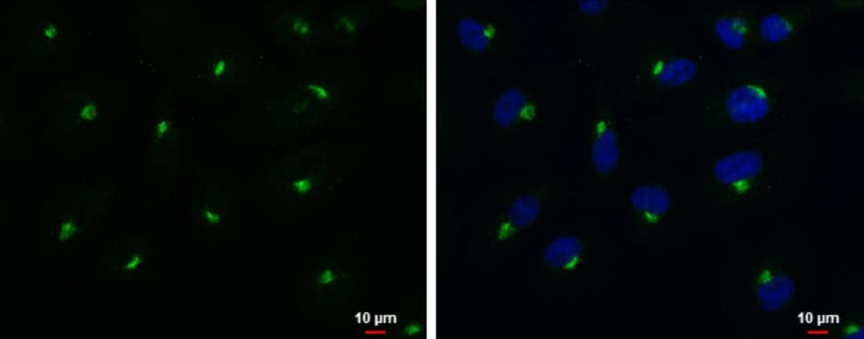 Immunocytochemistry/ Immunofluorescence - Anti-Rab-6 antibody (ab95954)