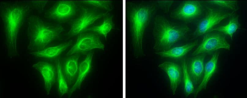 Immunocytochemistry/ Immunofluorescence - Anti-TUBA1A antibody (ab95966)