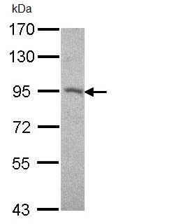 Western blot - Anti-Desmocollin 2 antibody (ab95967)
