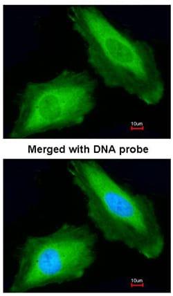 Immunocytochemistry/ Immunofluorescence - Anti-DDX3 antibody (ab95979)