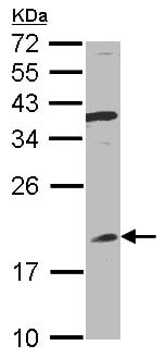Western blot - Anti-Interferon alpha 8 antibody (ab96003)
