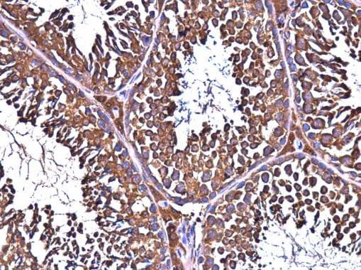 Immunohistochemistry (Formalin/PFA-fixed paraffin-embedded sections) - Anti-ALDH1A2 antibody (ab96060)