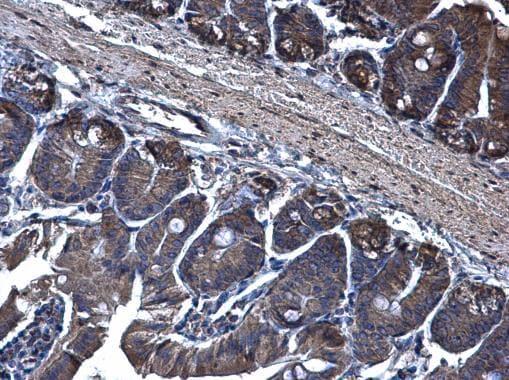 Immunohistochemistry (Formalin/PFA-fixed paraffin-embedded sections) - Anti-TRAM1/TRAM antibody (ab96106)