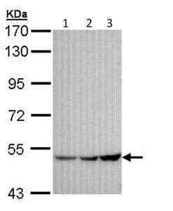 Western blot - Anti-GIRK1 antibody (ab96168)