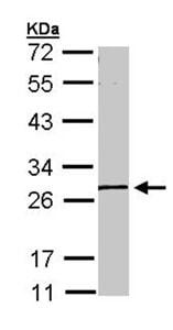 Western blot - Anti-GK5 antibody (ab96202)