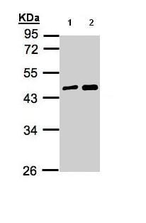 Western blot - Anti-MAGEA11 antibody (ab96236)