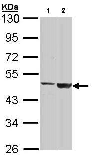 Western blot - Anti-GAL3ST1/Cerebroside sulfotransferase antibody (ab96243)