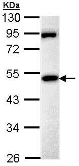 Western blot - Anti-MPP1 antibody (ab96255)
