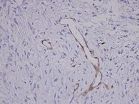 Immunohistochemistry (Formalin/PFA-fixed paraffin-embedded sections) - Anti-Coronin 3 antibody (ab96266)