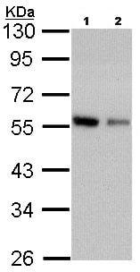 Western blot - Anti-Coronin 3 antibody (ab96266)