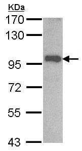 Western blot - Anti-OSBPL6 antibody (ab96286)
