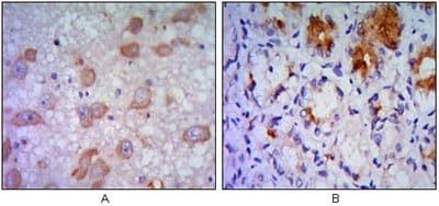 Immunohistochemistry (Formalin/PFA-fixed paraffin-embedded sections) - Anti-IRE1 antibody [9F2] (ab96481)