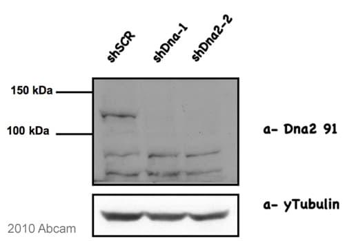Western blot - Anti-DNA2 antibody (ab96488)
