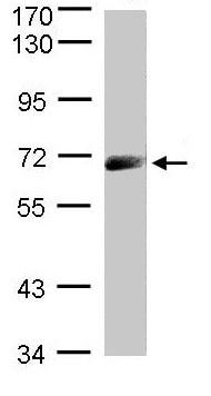 Western blot - Anti-IL-12RB1 antibody (ab96517)
