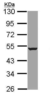 Western blot - Anti-HADHB antibody (ab96524)