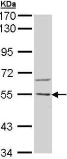 Western blot - Anti-CAMKK2 antibody (ab96531)