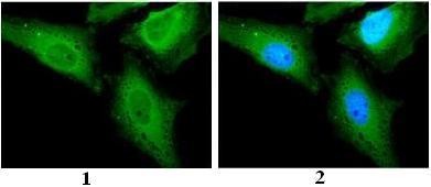 Immunocytochemistry/ Immunofluorescence - Anti-CAMKK2 antibody (ab96531)