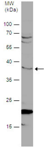 Western blot - Anti-DNAJB6 antibody (ab96539)