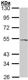 Western blot - Anti-VPAC2 antibody (ab96608)