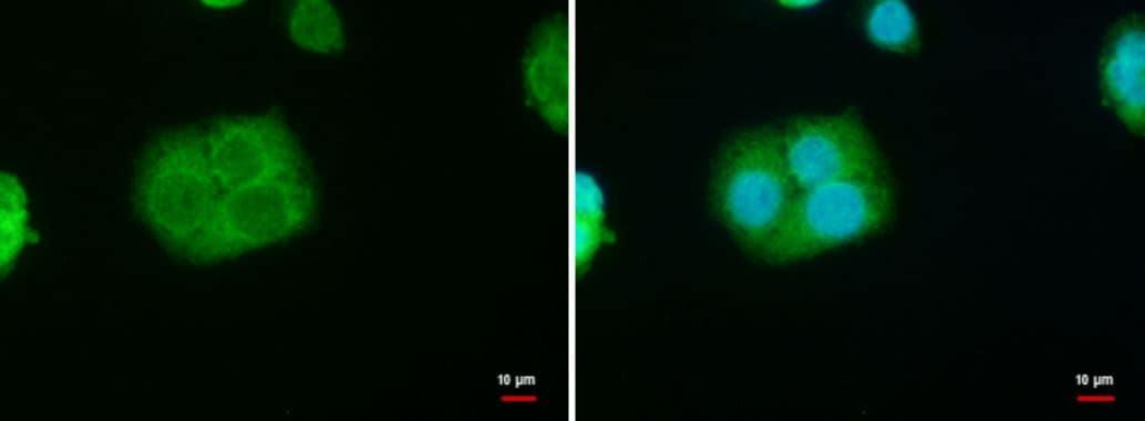 Immunocytochemistry - Anti-StAR antibody (ab96637)