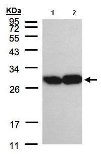 Western blot - Anti-Triosephosphate isomerase antibody (ab96696)