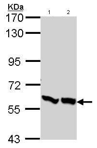 Western blot - Anti-PFKFB3 antibody (ab96699)