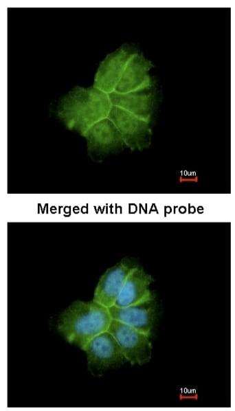 Immunocytochemistry/ Immunofluorescence - Anti-COL1A2 antibody (ab96723)