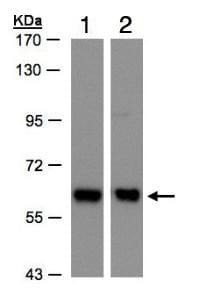 Western blot - Anti-Coatomer subunit delta/COPD antibody (ab96725)