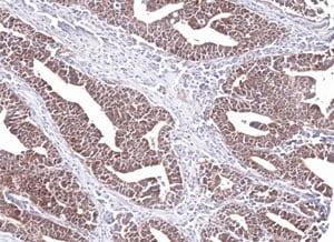 Immunohistochemistry (Formalin/PFA-fixed paraffin-embedded sections) - Anti-PCCB antibody (ab96729)