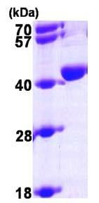 SDS-PAGE - Recombinant Human UPD protein (ab96770)