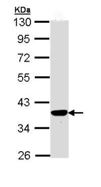 Western blot - Anti-PIG3 antibody (ab96819)