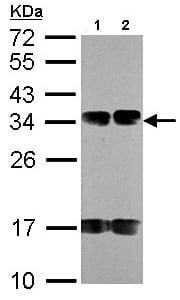 Western blot - Anti-FUS2 antibody (ab96844)