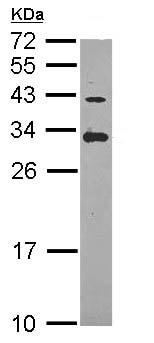 Western blot - Anti-ING5 antibody (ab96851)
