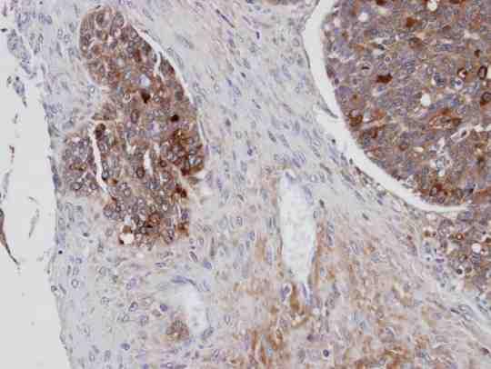 Immunohistochemistry (Formalin/PFA-fixed paraffin-embedded sections) - Anti-Mesothelin antibody (ab96869)
