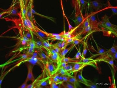 Immunocytochemistry/ Immunofluorescence - Donkey Anti-Mouse IgG H&L (DyLight® 488) (ab96875)