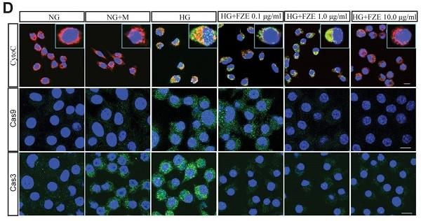 Immunocytochemistry/ Immunofluorescence - Goat Anti-Rabbit IgG H&L (DyLight® 488) preadsorbed (ab96899)