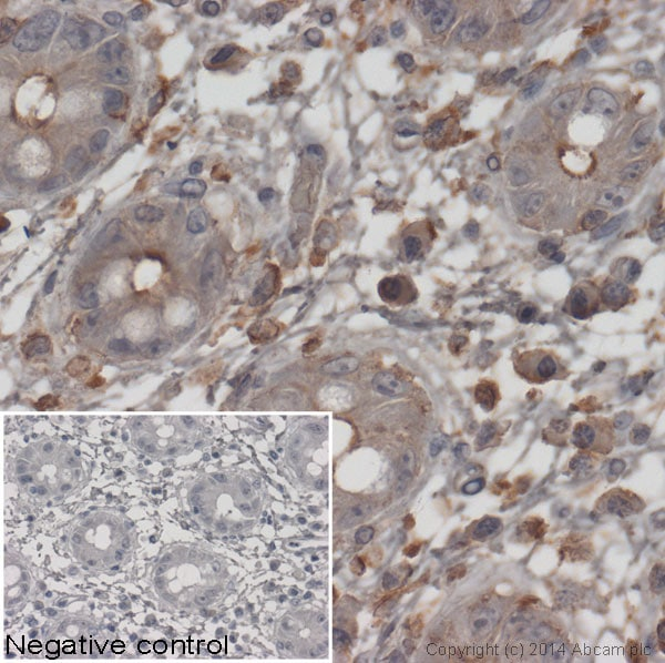 Immunohistochemistry (Formalin/PFA-fixed paraffin-embedded sections) - Goat Anti-Mouse IgG H&L (HRP) preadsorbed (ab97040)