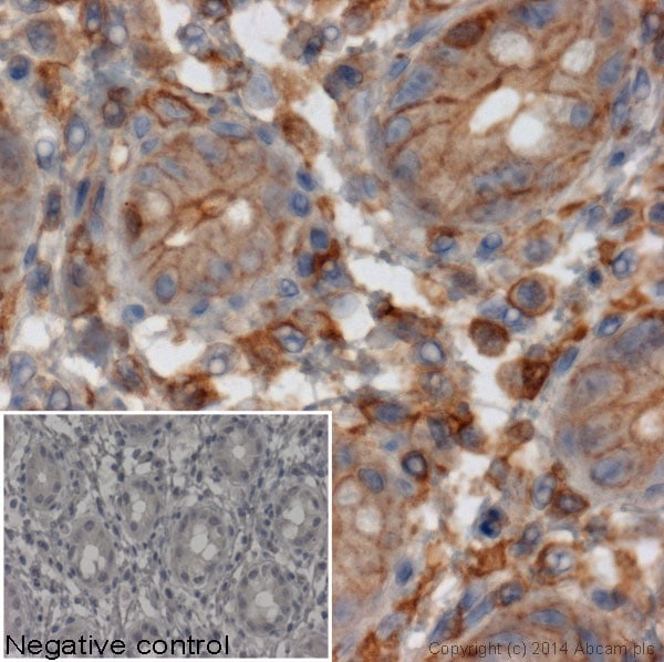 Immunohistochemistry (Formalin/PFA-fixed paraffin-embedded sections) - Mouse monoclonal [SB62a] Anti-Rabbit IgG light chain (HRP) (ab99697)